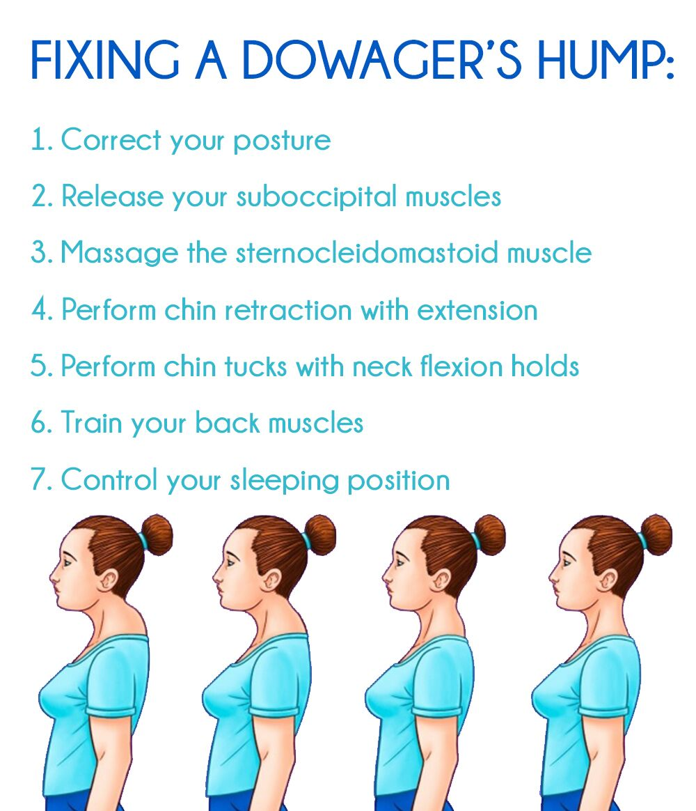 5fc40eca484270fcedb0852ff9960bcd - How To Get Rid Of Dowager S Hump Exercises