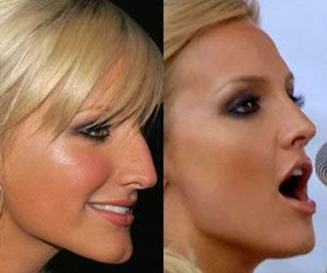 Celebrity Before And After Plastic Surgery Photos 2 Go To Www