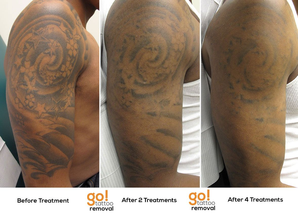 Stellar results on this half sleeve after 4 laser tattoo for Tattoo turned black after laser