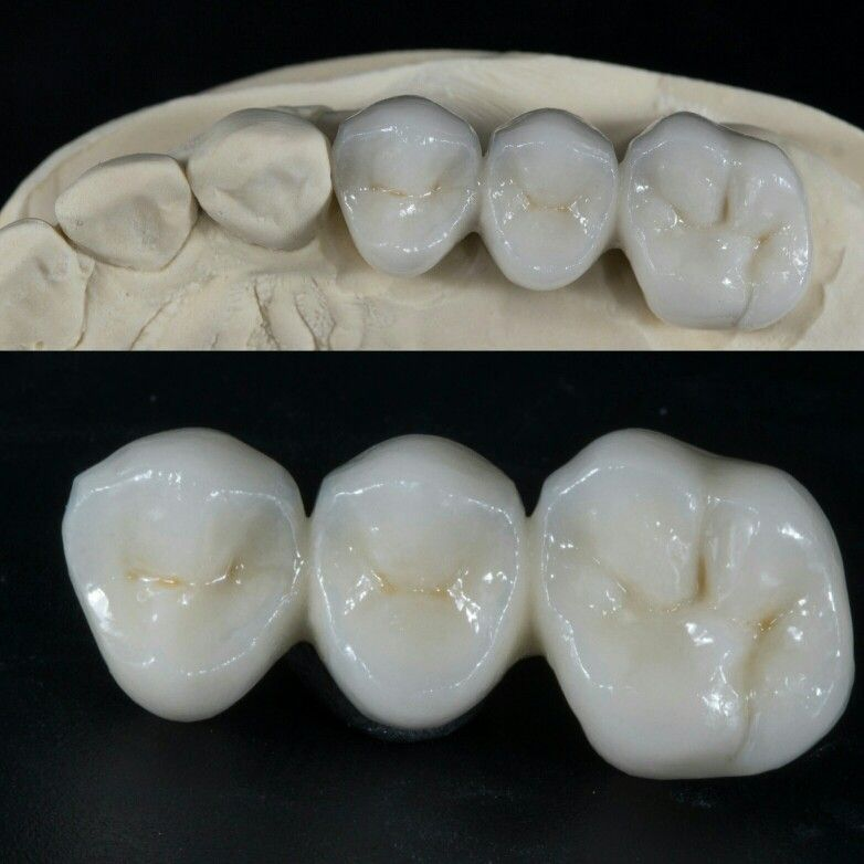 Dental Crowns 3 Unit Bridge PFM With Basic Layering