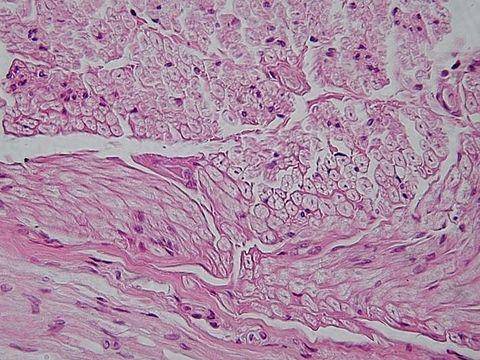 Tecido nervoso - O tecido que nos impulsiona a reagir  diante das sensações.