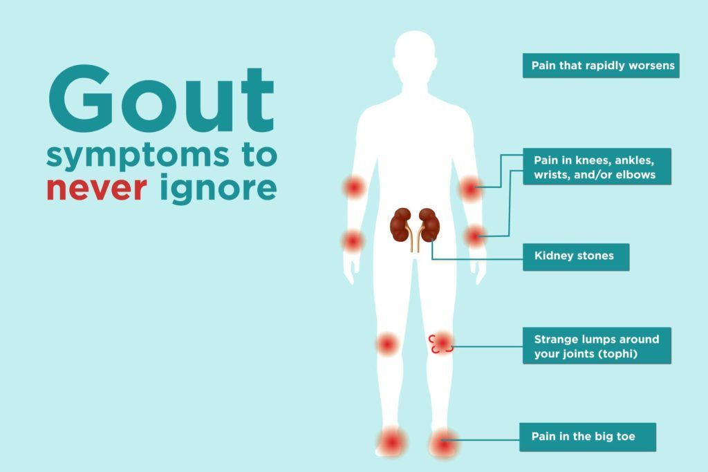 7 Gout Symptoms You Might Be Ignoring #Gout