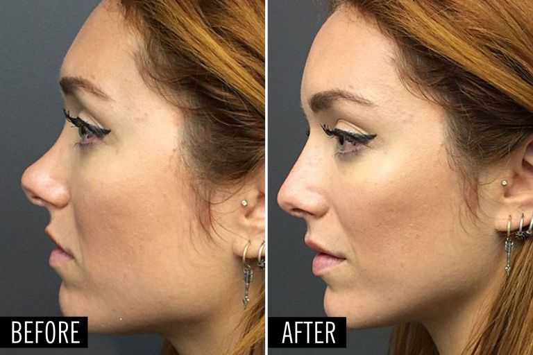 How a Plastic Surgeon Can Make This Nose Job Happen in 5