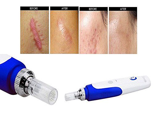 Auto Micro Aghi Derma penna Derma Roller derma timbro con