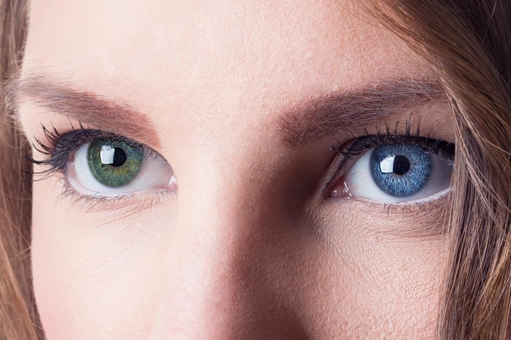 Human Chimeras Beautiful Eyes Color Different Colored Eyes