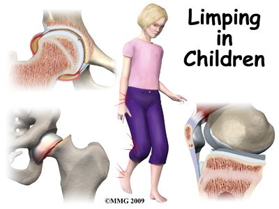 Slipped capital femoral epiphysis- known orthopedic