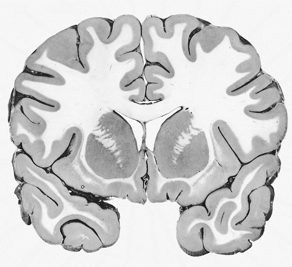 Mri Coronal View Brain Mri Scan Images Mri Scan Brain Mri [ 1024 x 1123 Pixel ]