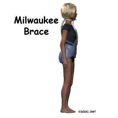 scoliosis back brace i didnt wear one but a few kids in