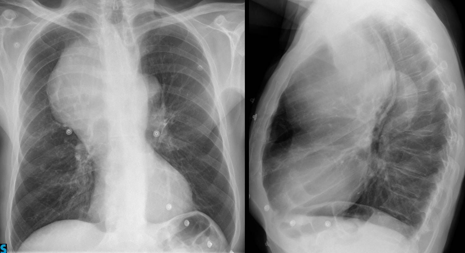 Findings: chest radiographs show a large anterior mediastinal mass ...