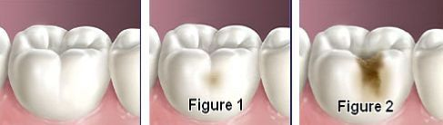 Fix Cavities Without Dentist Tooth Decay Remedies Dental Cavities Dental Caries