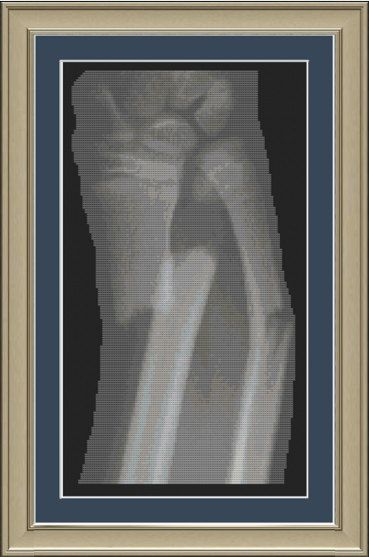 X Ray Of Fractured Forearm Anatomy Cross Stitch Pattern 3 00