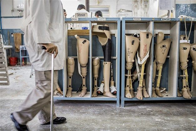 An orthopedic technician walks past prosthetic limbs being stored ...
