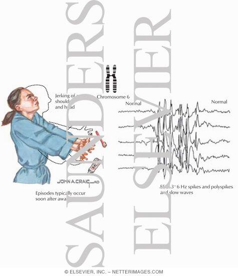Juvenile <b>Myoclonic Epilepsy</b> | epilepsy | Myoclonic