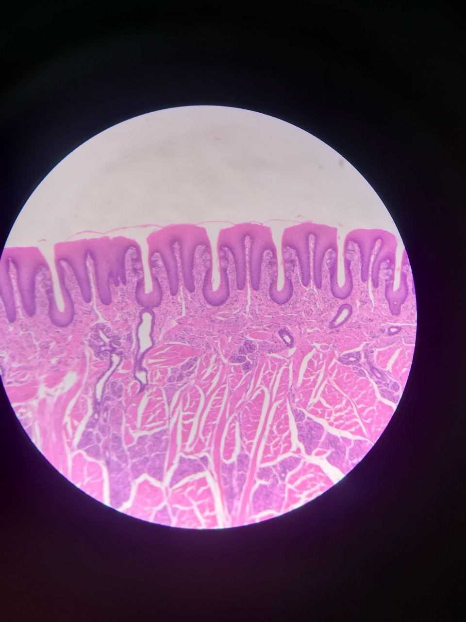 Corte histologico de Lengua | Anatomía médica | Pinterest | Lengua ...