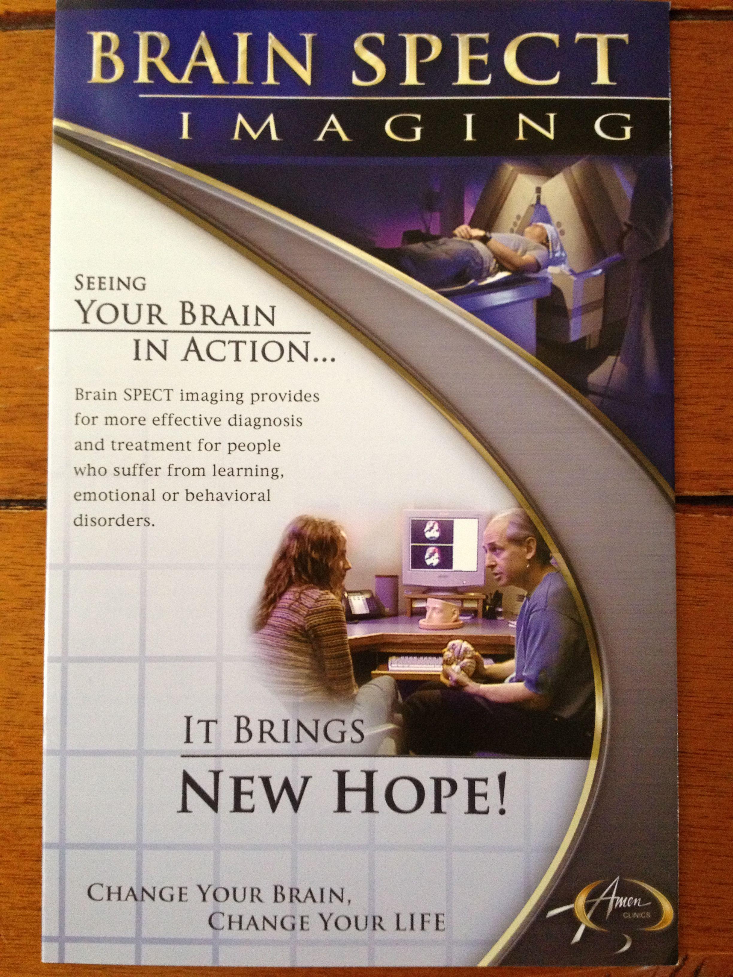 Brain Spect Imaging from Dr, Daniel Amen Daniel amen