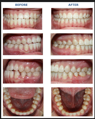 A Crossbite Can Be In The Back Or Front Of Your Mouth And Can Be