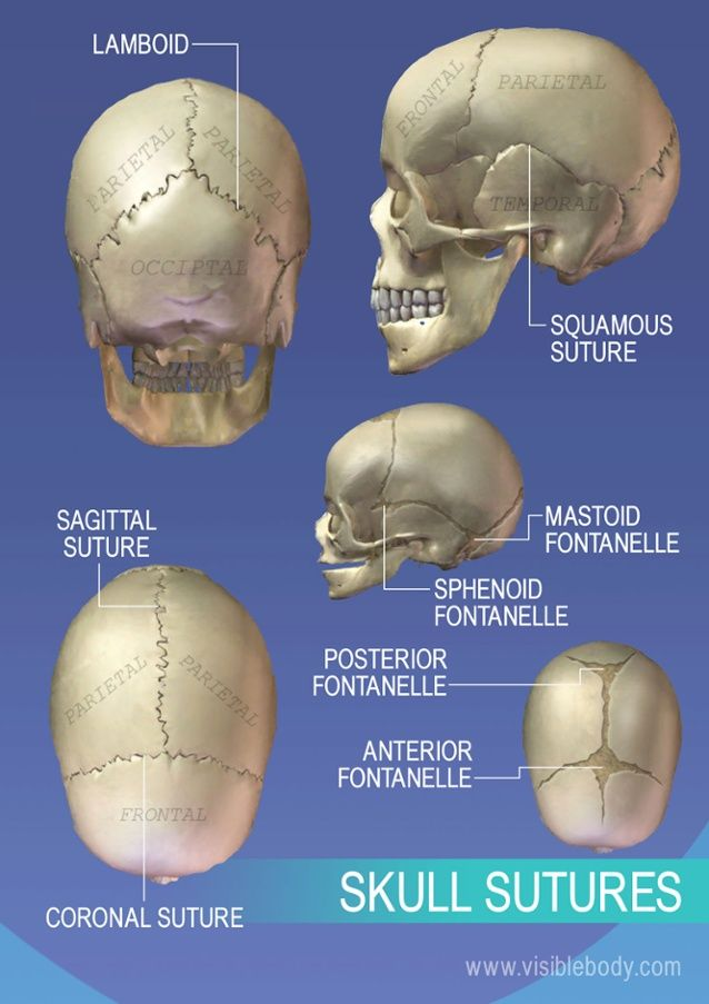 Sutures Of The Skull Bones In The Body Pinterest Radiology And