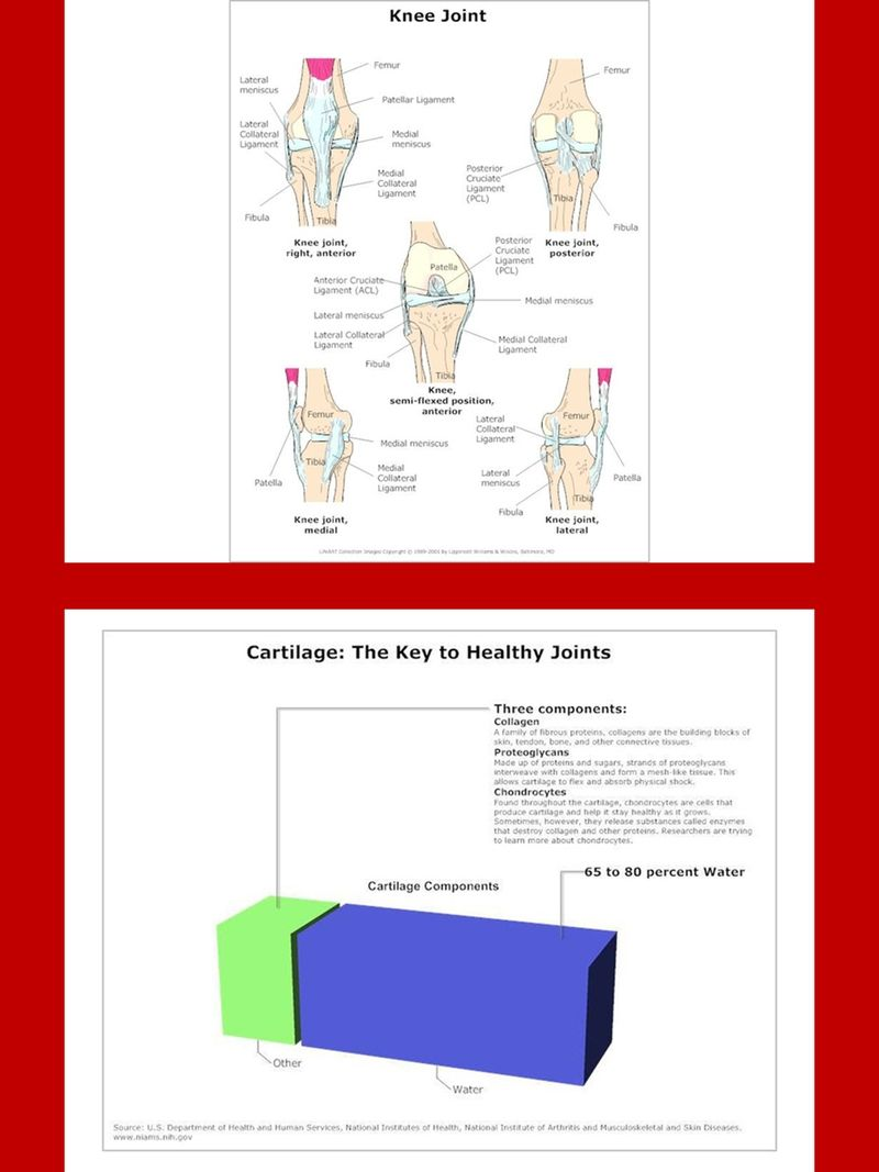 Arthritis Charts And Diagrams With Private Label Rights 24 Pictorial That