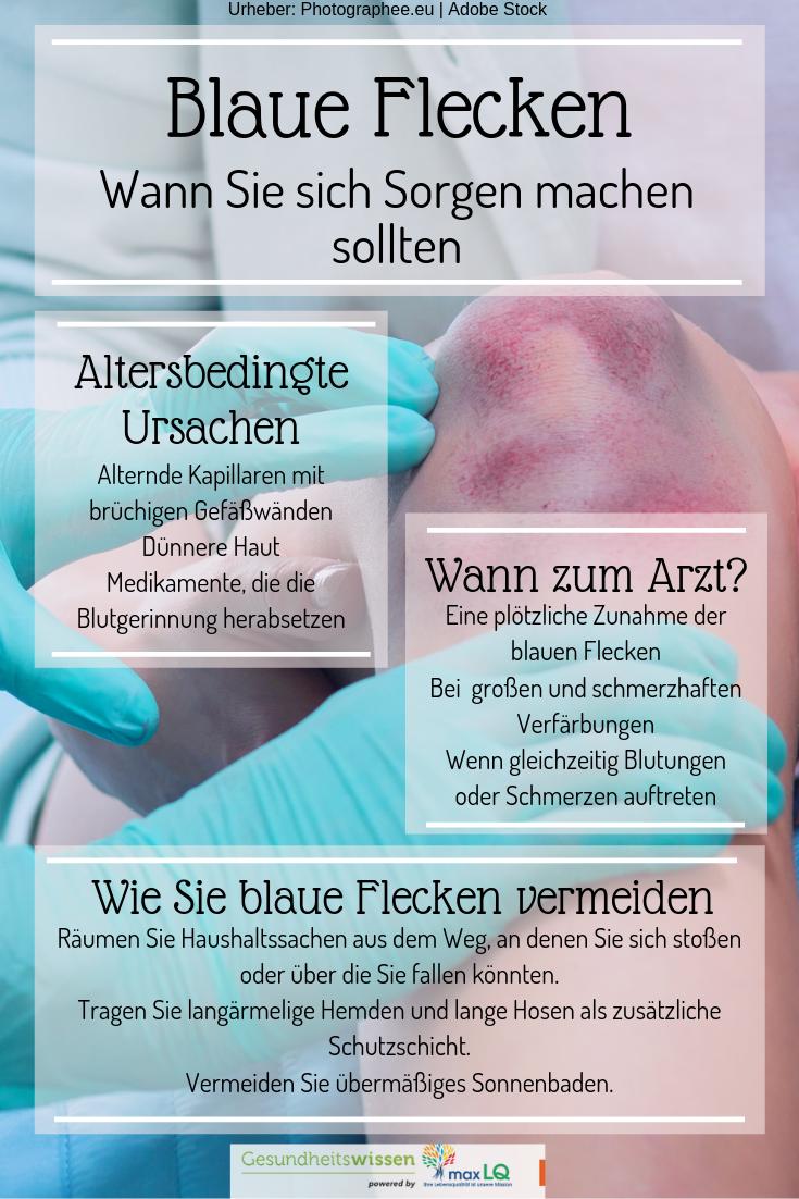 Blaue Flecken - Ursachen eines Hämatoms | Naturheilkunde, Altenpflege, Ganzheitliche gesundheit
