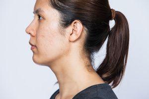 https://www.amoils.com/health-blog/scars-choices-treatment/