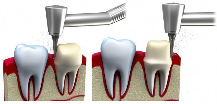 Dental crown dentalhealth dentalhealthtips dentalcare