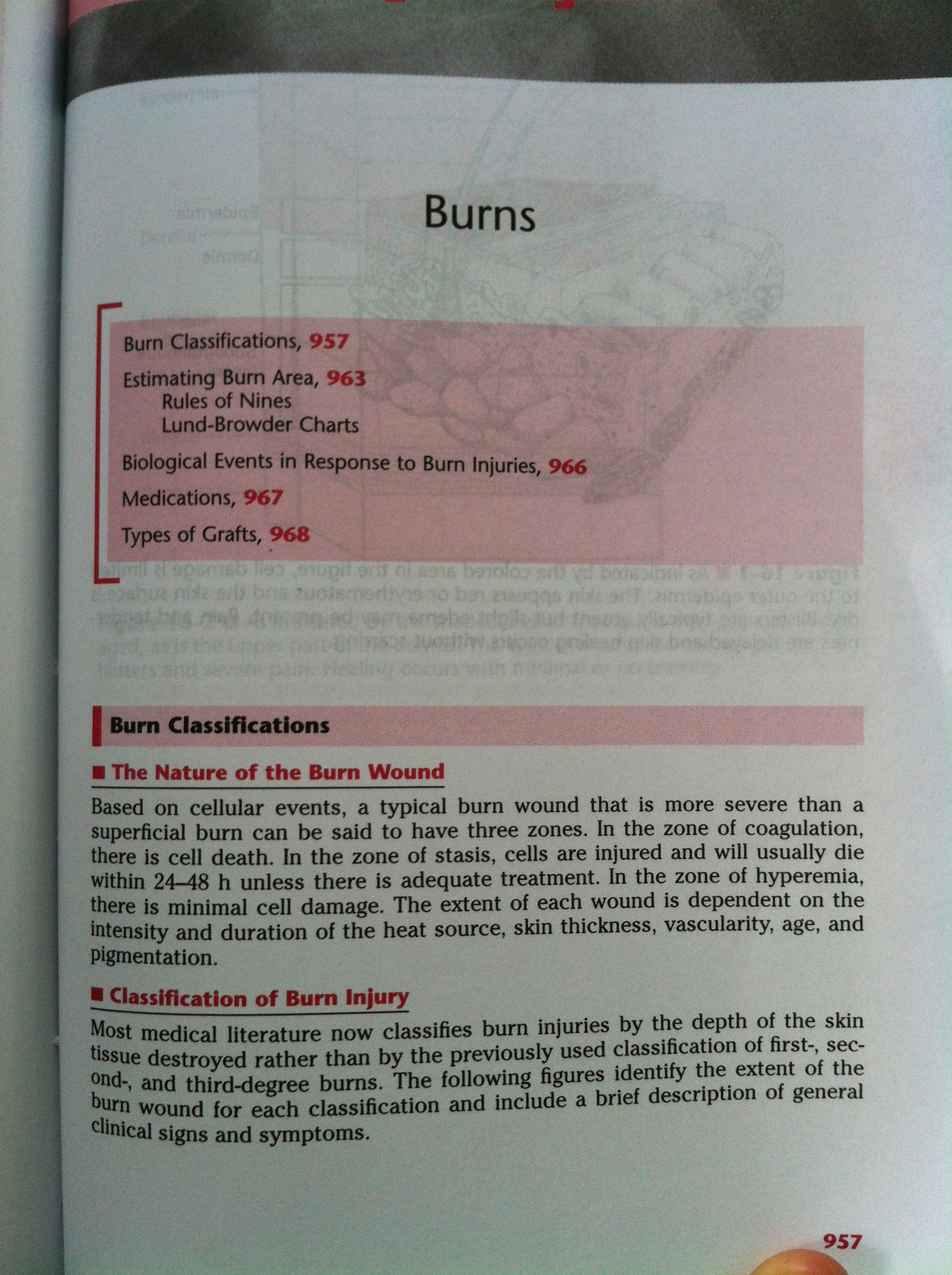 Burn 1 With Images