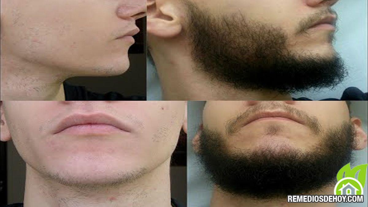 Haz Crecer Tu Barba En 3 Semanas Naturalmente Crecer Barba