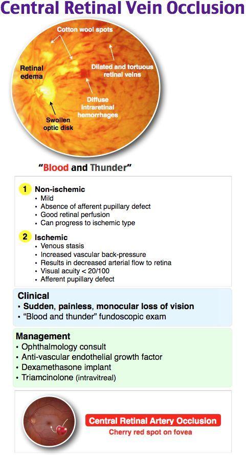 Central retinal vein occlusion diagram | Anatomy note world | Pinterest