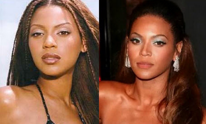 10 Famous Celebrity Nose Jobs Before And After Pictures Nose