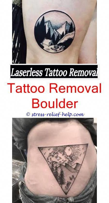 tattoo treatment tattoo removal centers of america - tattoo removal ...