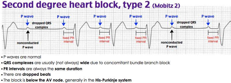 Rosh Review Heart Blocks Pr Interval P Wave