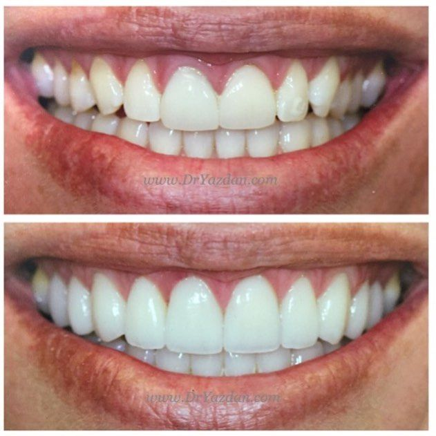 Pin By Image Dental On Cosmetic Dentistry