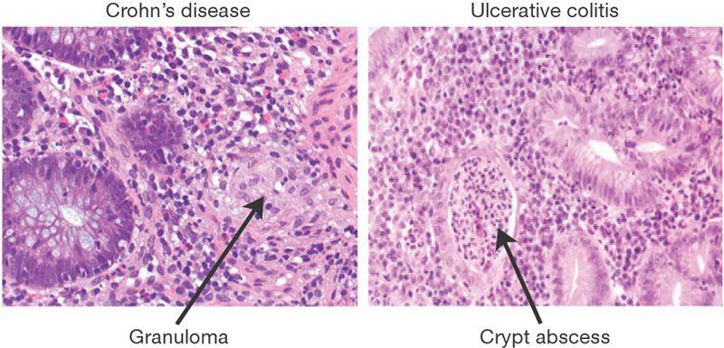 Granuloma Vs Crypt Abscess Crohns Disease Crohns Inflammatory Bowel Disease