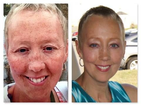 """OH MY WORD! WOULD YOU JUST LOOK AT THIS???? This is Donella, who is on my R+F team!! LOOK AT HER R+F RESULTS!!! This is what she had to say: """"Hi Team! Just wanted to share with you my before and after pics from Rodan + Fields.......I use the Reverse Regimen in the morning, everyday and the the Redefine Eye Cloths, along with the Redefine Multi-Function Eye Cream at night. I have been using it religiously since March."""" JUST BEAUTIFUL!! Who else is READY FOR GREAT SKIN?"""