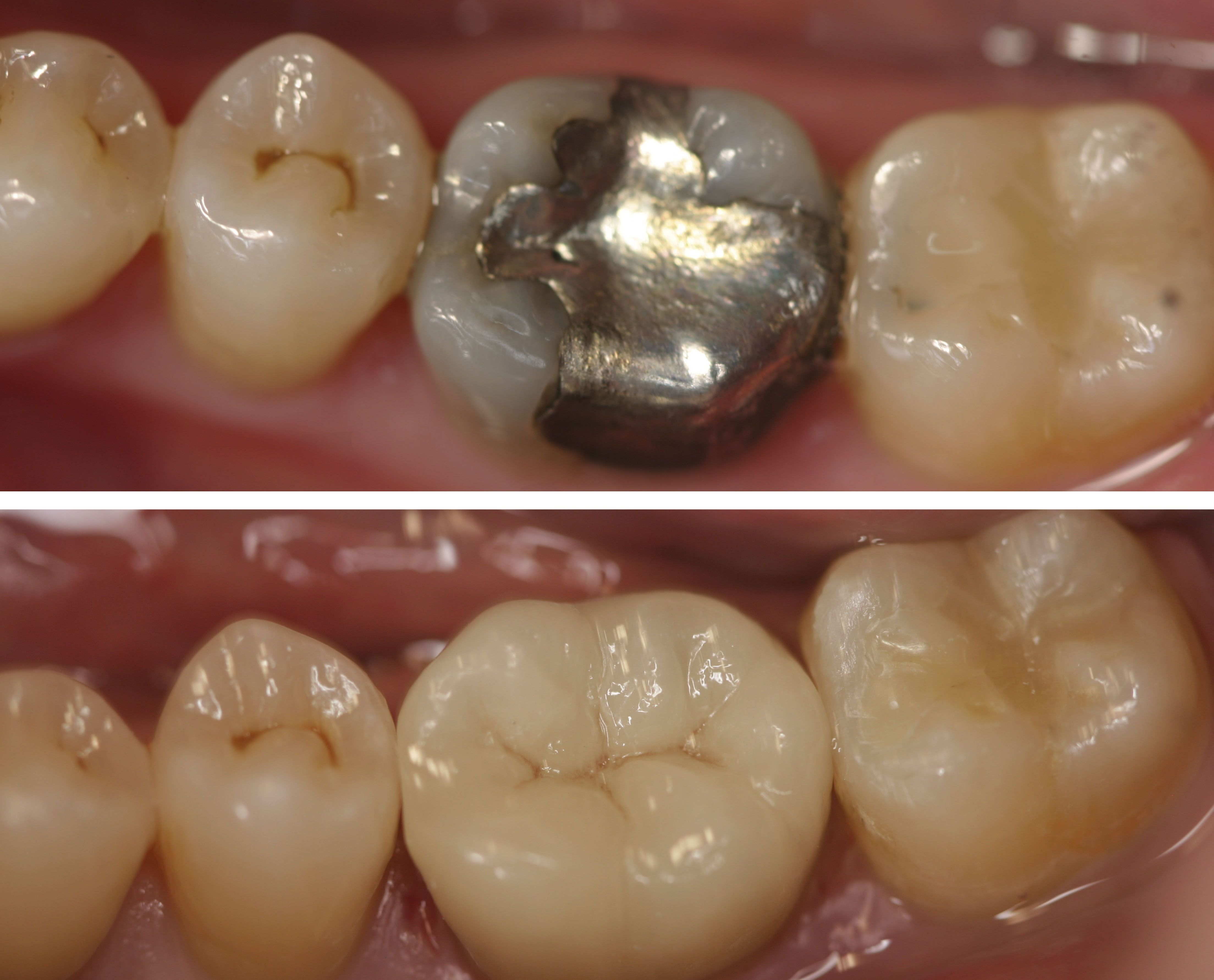 Before and After Patient had a large amalgam filling that
