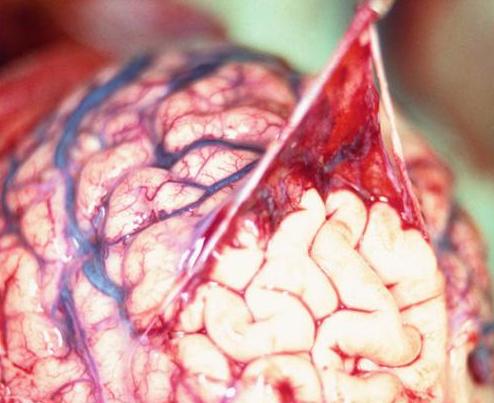Bundy-Ramirez-dahmer: La membrana aracnoides se despega de la corteza subyacente del cerebro.  Esta membrana se encuentra entre las capas de las meninges que rodean el cerebro.