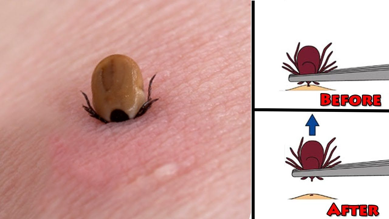 Natural Way To Remove Ticks