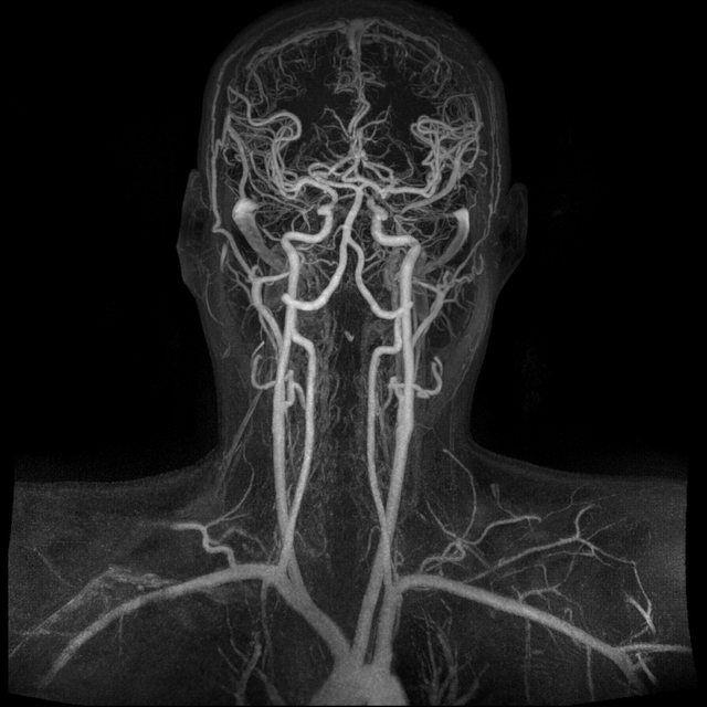 Magnetic Resonance Angiogram of the Brain Magnetic resonance ...