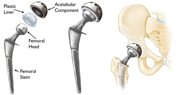 What Is The Cost Of Best Hip Replacement Surgery India Total Hip Replacement Hip Replacement Hip Replacement Surgery