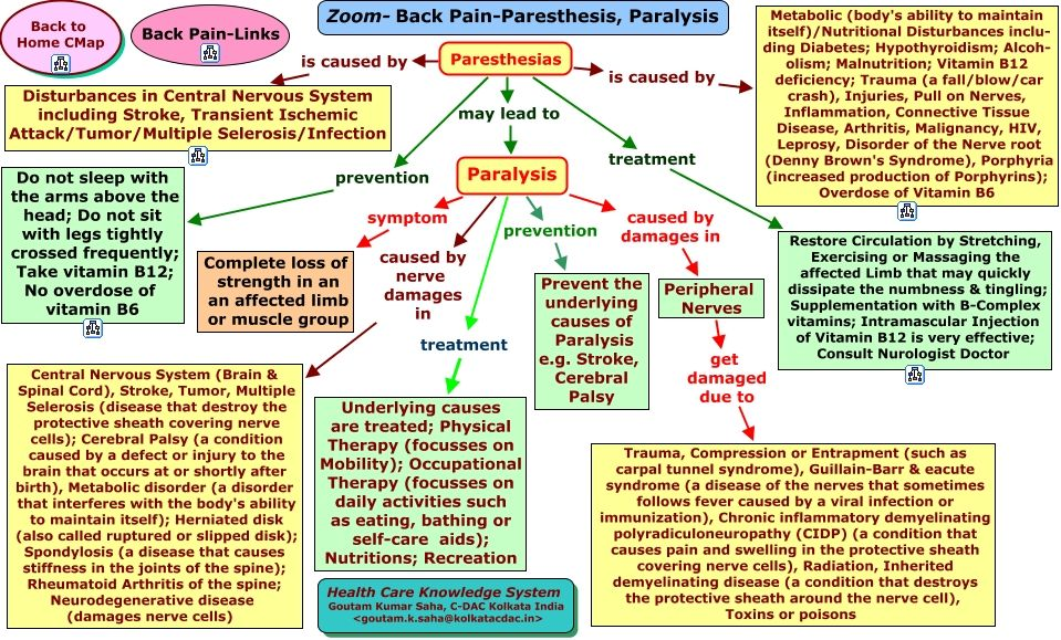 peripheral nerve palsy - Google Search