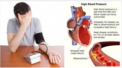 13+ Makanan penurun tekanan darah tinggi trends