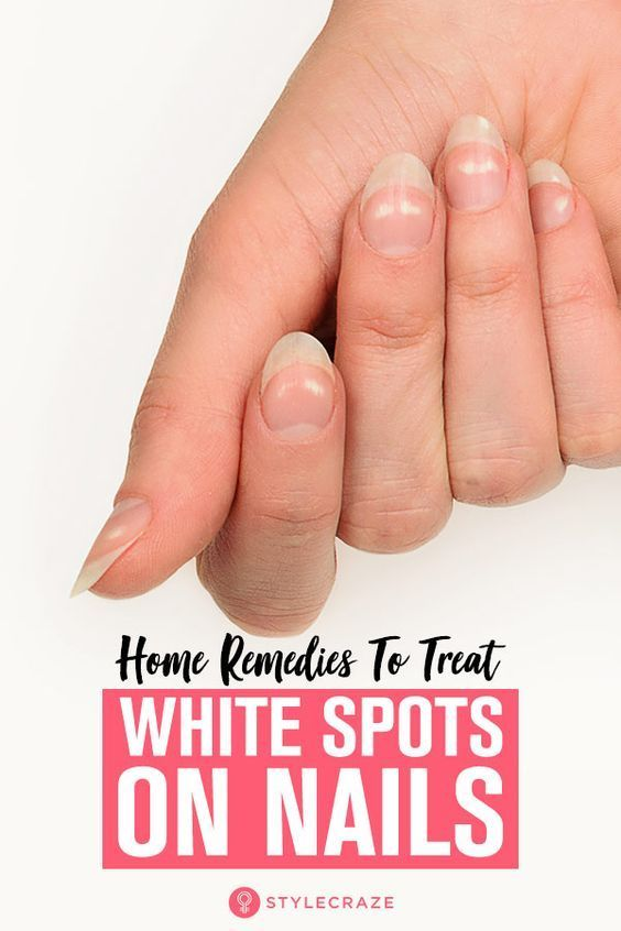 how to get rid of white spots on nails fast