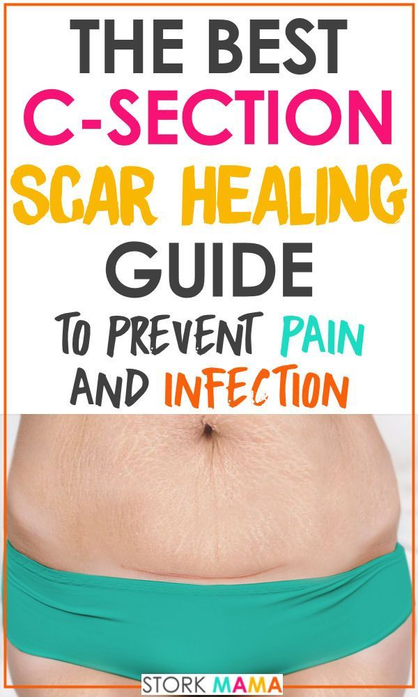5b36678c7a C-Section Scar Healing Care Guide