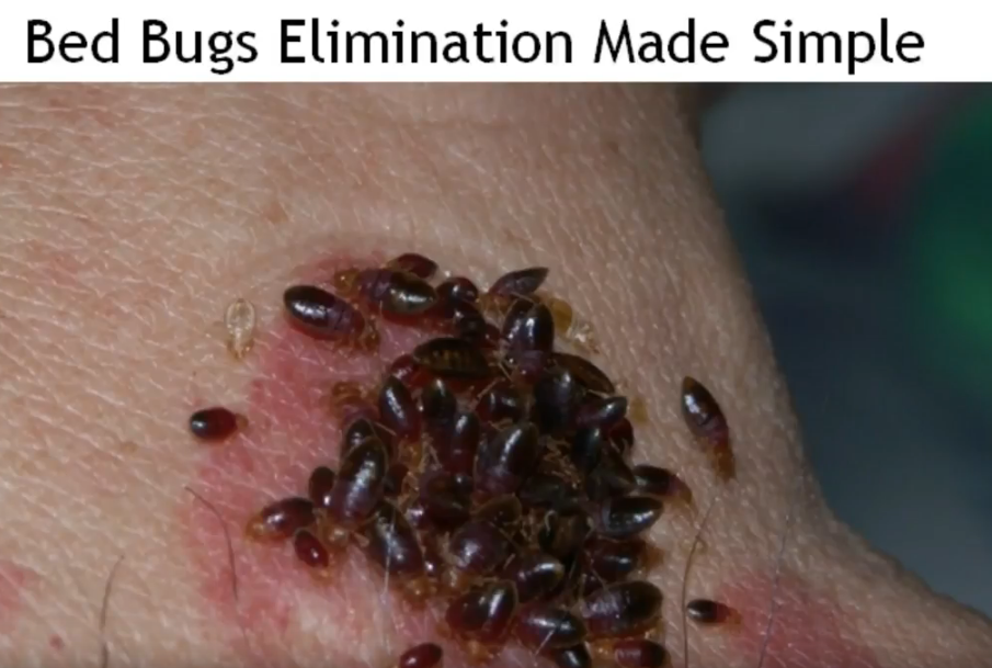Click for a Extremely Powerful Home Treatment for bed bugs