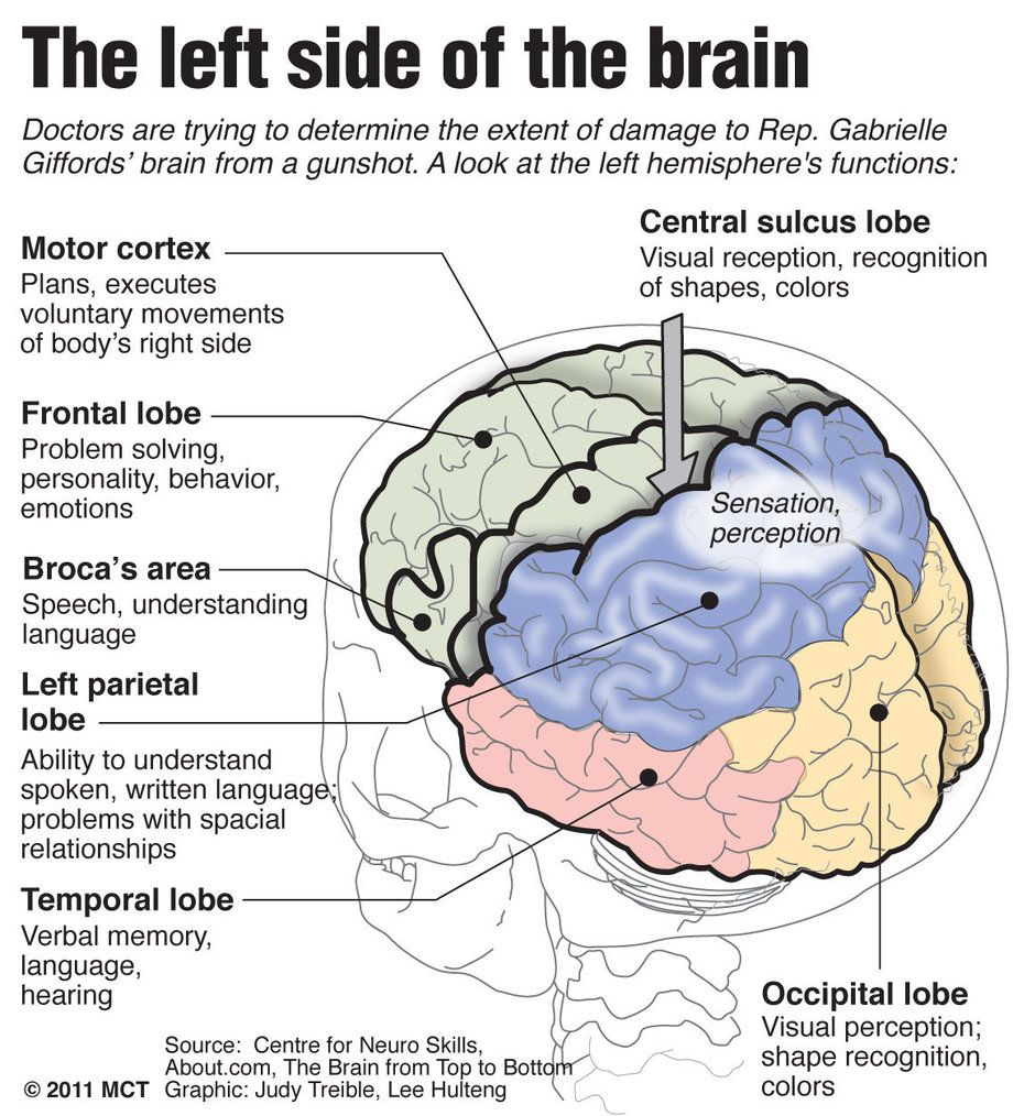 Google Image Result For Http Media Mcclatchydc Com Smedia 2011 01 14 18 20110111 Giffords Brain Large Prod Aff Learning Science Brain Diagram Science Biology