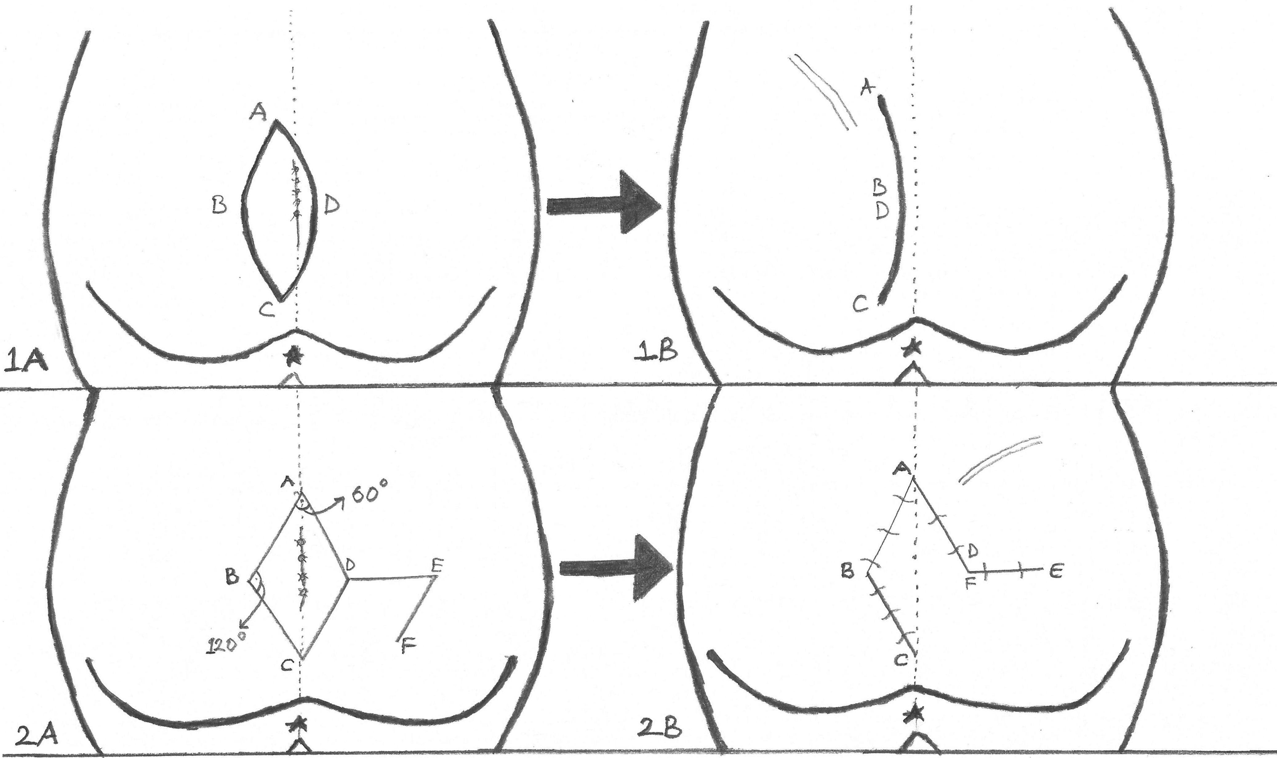 Limberg Flap Or Bascom For Pilonidal Cyst Plastic