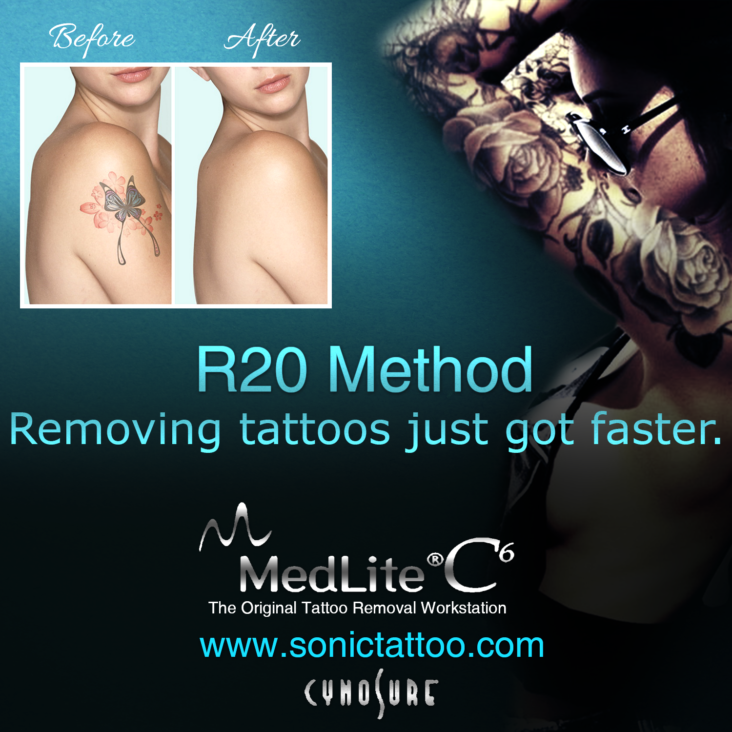 The R20 Method! Removing Tattoos 4x Faster!