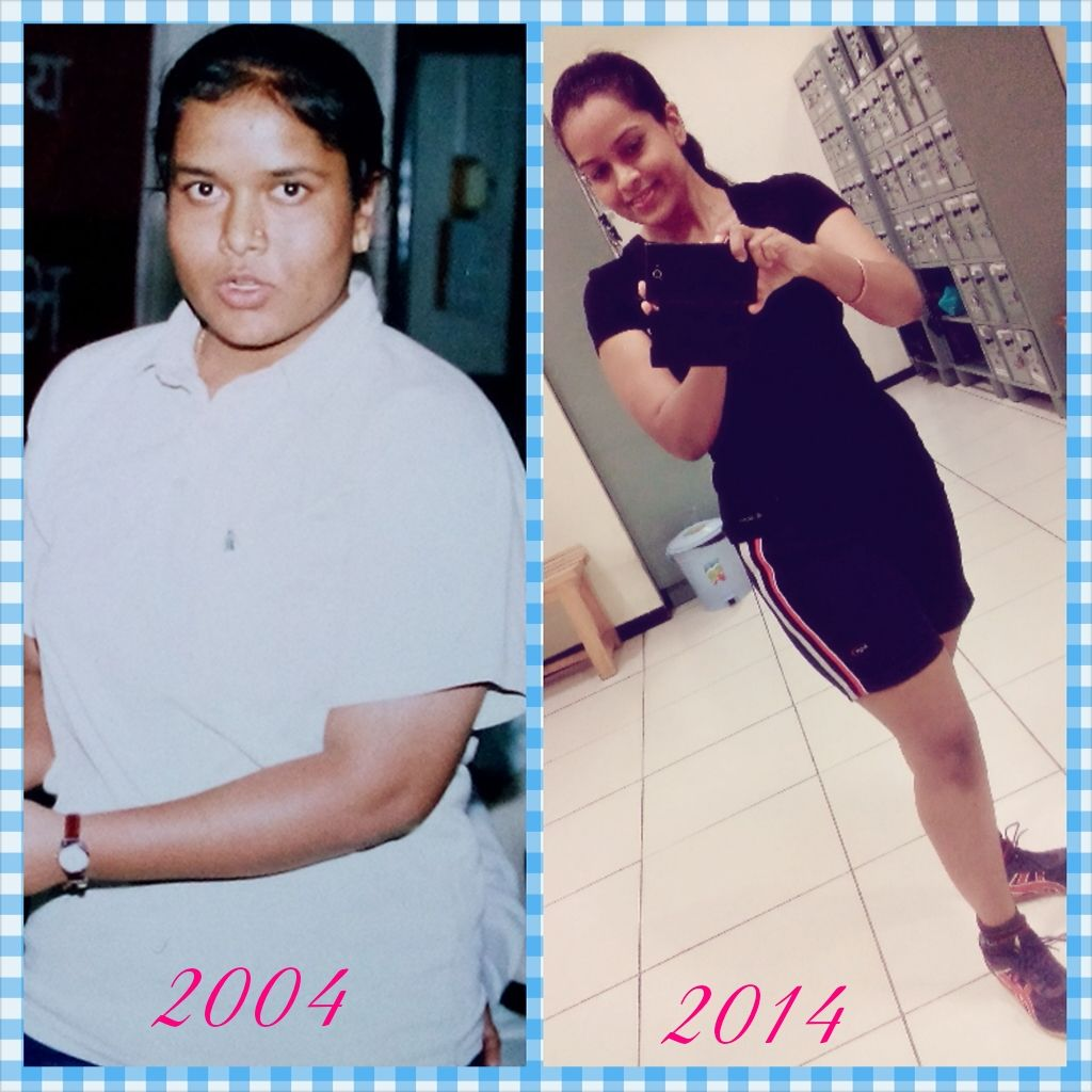 Unexplained weight loss tb