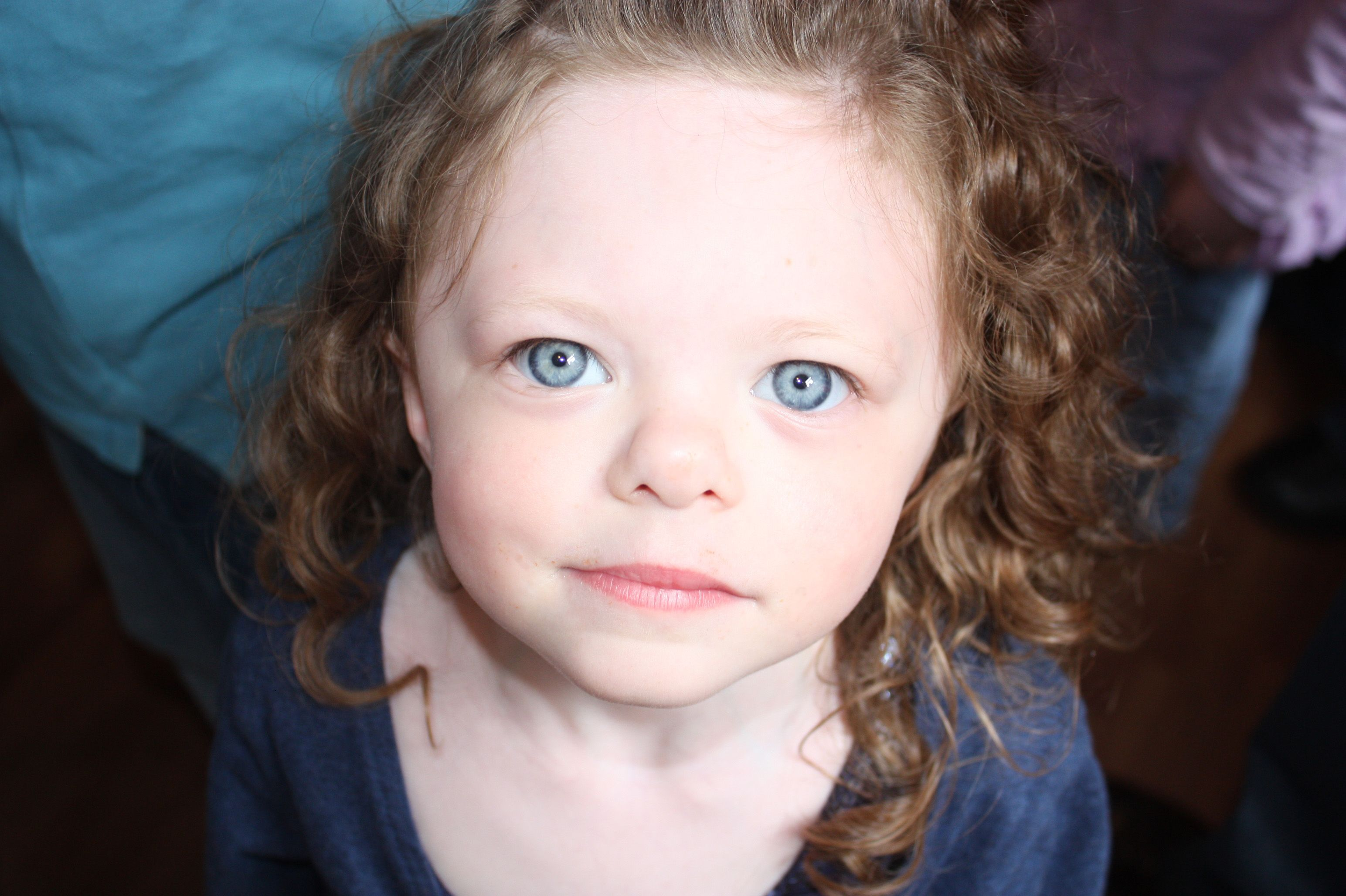 williams syndrome Explore jessica degroff's board williams syndrome on pinterest | see more ideas about williams syndrome, autism and autism spectrum disorder.