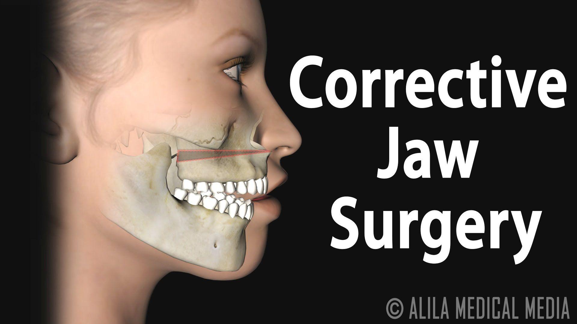 Corrective Jaw (Orthognathic) Surgery, Animation. | poster ...